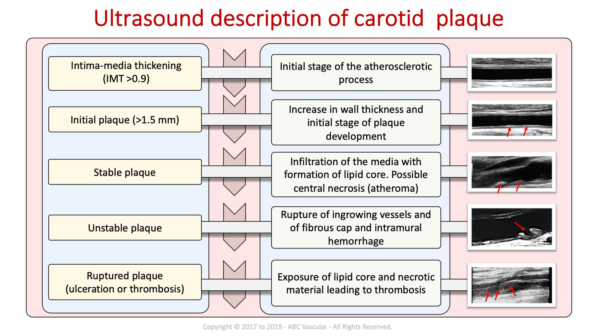 Carotid Course Info | Abc Vascular With Carotid Ultrasound Report Template